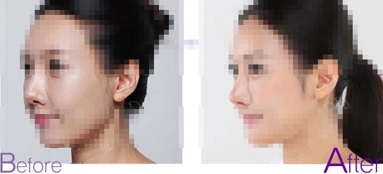 修复隆鼻疤痕