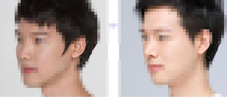 鼻子修复对比照片
