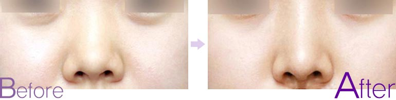 鼻形修复前后对比图