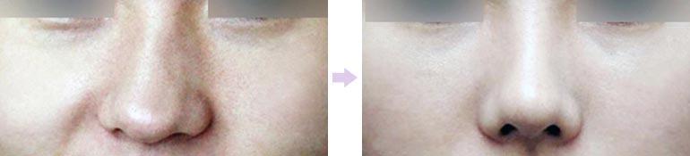 隆鼻假体倾斜修正对比图