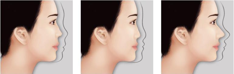 哪些人适合做隆鼻手术