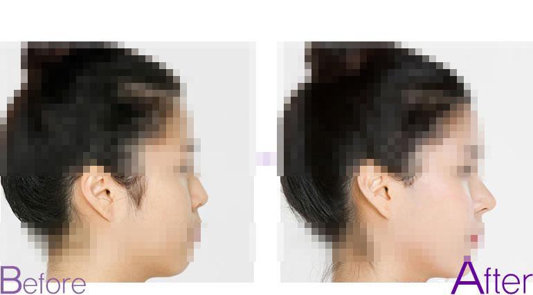 鼻头整形前后对比图