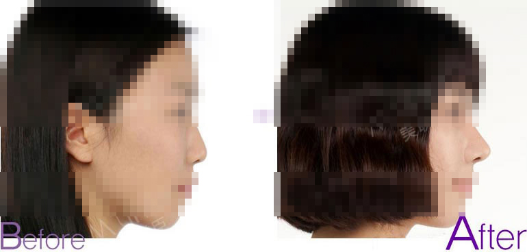 鼻头整形对比照