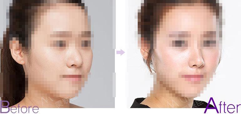 鼻头缩小前后对比图