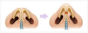 鼻头整形示意图