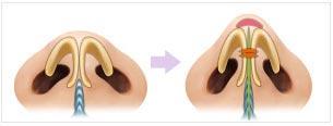 垫高鼻头手术方案