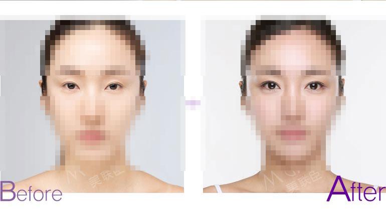 开眼角手术前后对比图