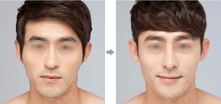 美联臣男士面部整形前后对比照片