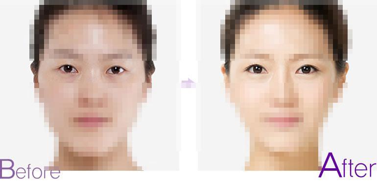 双眼皮前后对比图,埋线双眼皮前后对比照