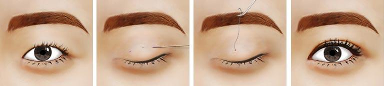 美联臣韩式透睑埋线法、埋线双眼皮手术过程