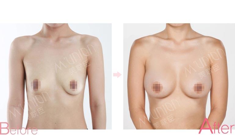 乳房下垂矫正术前后对比图