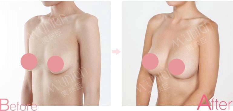 乳房提升前后对比照片