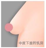 石家庄胸部下垂提升