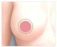 美联臣乳房下垂矫正术