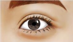 修复双眼皮对比