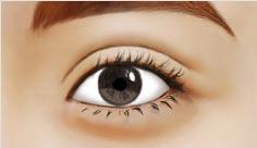苏亚美联臣双眼皮修复术