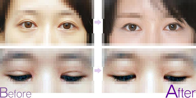 双眼皮太深如何修复
