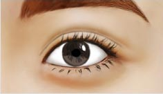 石家庄双眼皮术后修复