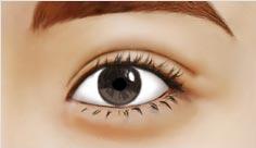修复双眼皮手术哪里好