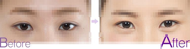双眼皮失败修复,双眼皮较宽去哪修复