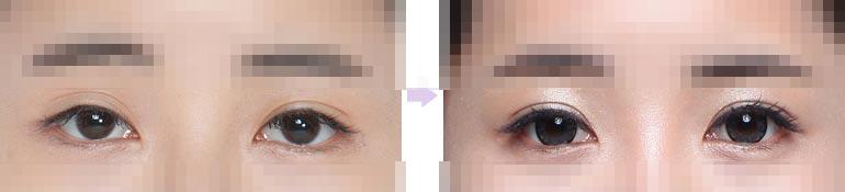 修复双眼皮线条前后对比