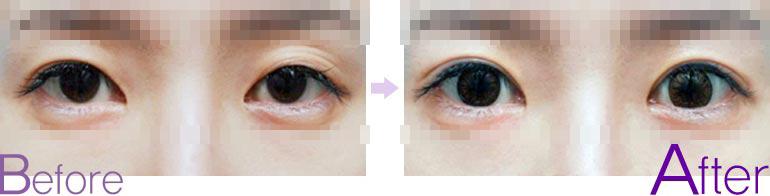 双眼皮修复对比图