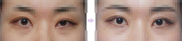 双眼皮不对称去哪修复