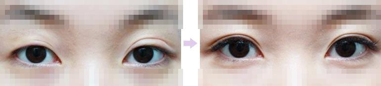 修复双眼皮案例