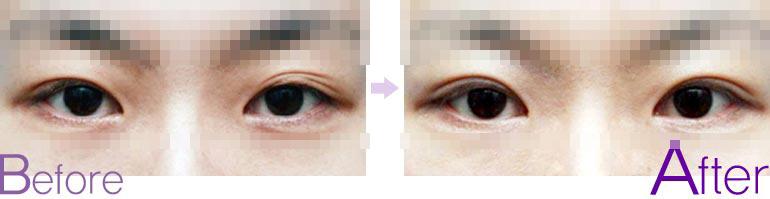 双眼皮失败案例