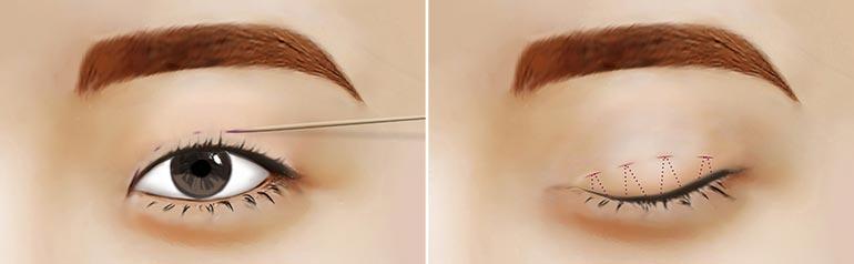微创定位双眼皮手术步骤