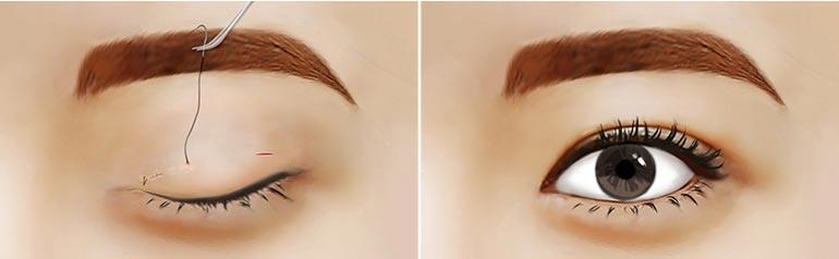 美联臣双眼皮手术示意图