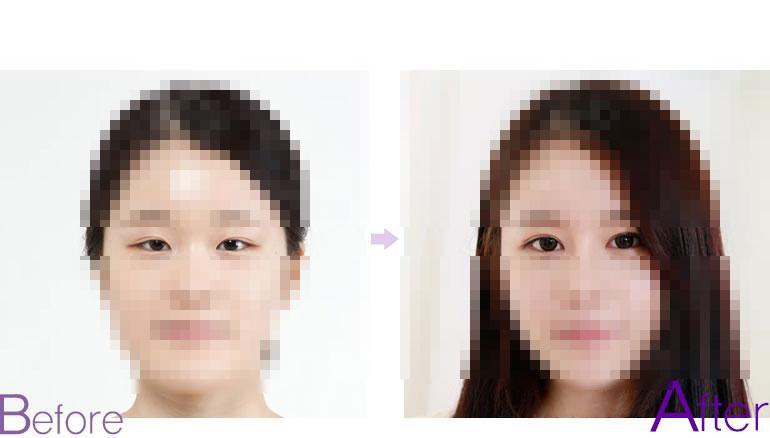 韩式微创双眼皮图片