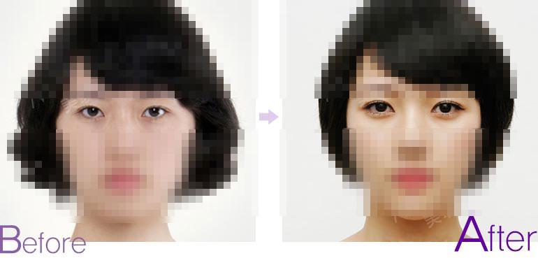 定位双眼皮对比图