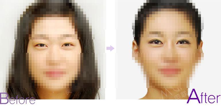 定位双眼皮对比照片