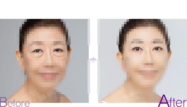 眼睑下垂手术前后对比照
