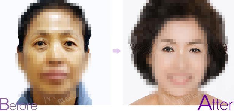 眼睑下垂矫正对比图片