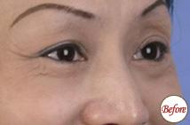 玻尿酸注射眼周皱纹术前