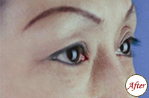 玻尿酸注射眼周皱纹术后