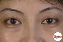 玻尿酸注射下眼睑凹陷术前