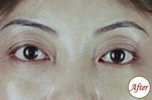 玻尿酸注射下眼睑凹陷术后