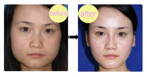 注射瘦脸前后对比