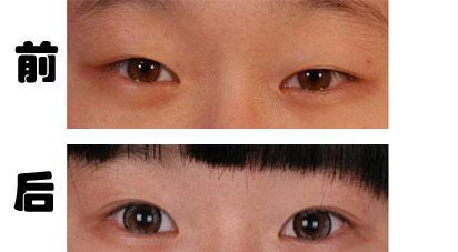 石家庄美联臣双眼皮_双眼皮修复效果图-双眼皮修复案例-石家庄苏亚美联臣