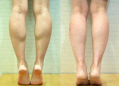 瘦小腿前后整形照片