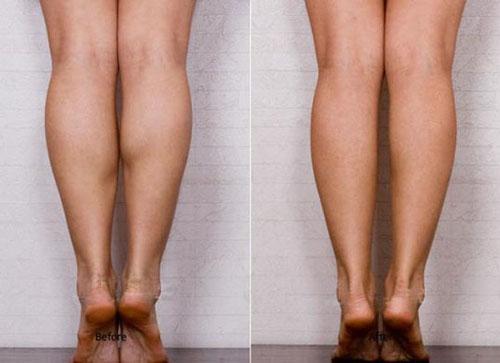 botxo注射瘦小腿照片