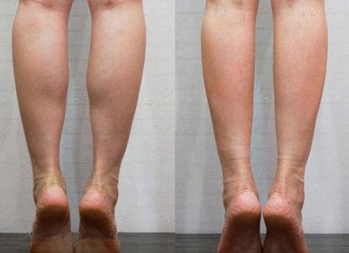 瘦小腿术前术后案例对比图