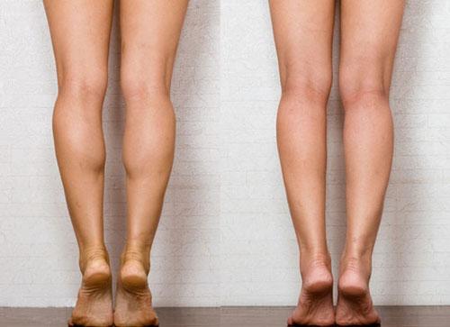 瘦小腿术前术后照片