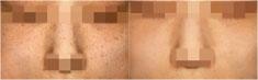 激光祛斑对比案例