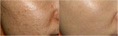 激光去痘印前后对比案例