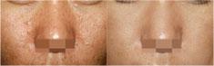 激光去痘印前后对比图片