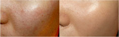 激光去痘印前后对比照片